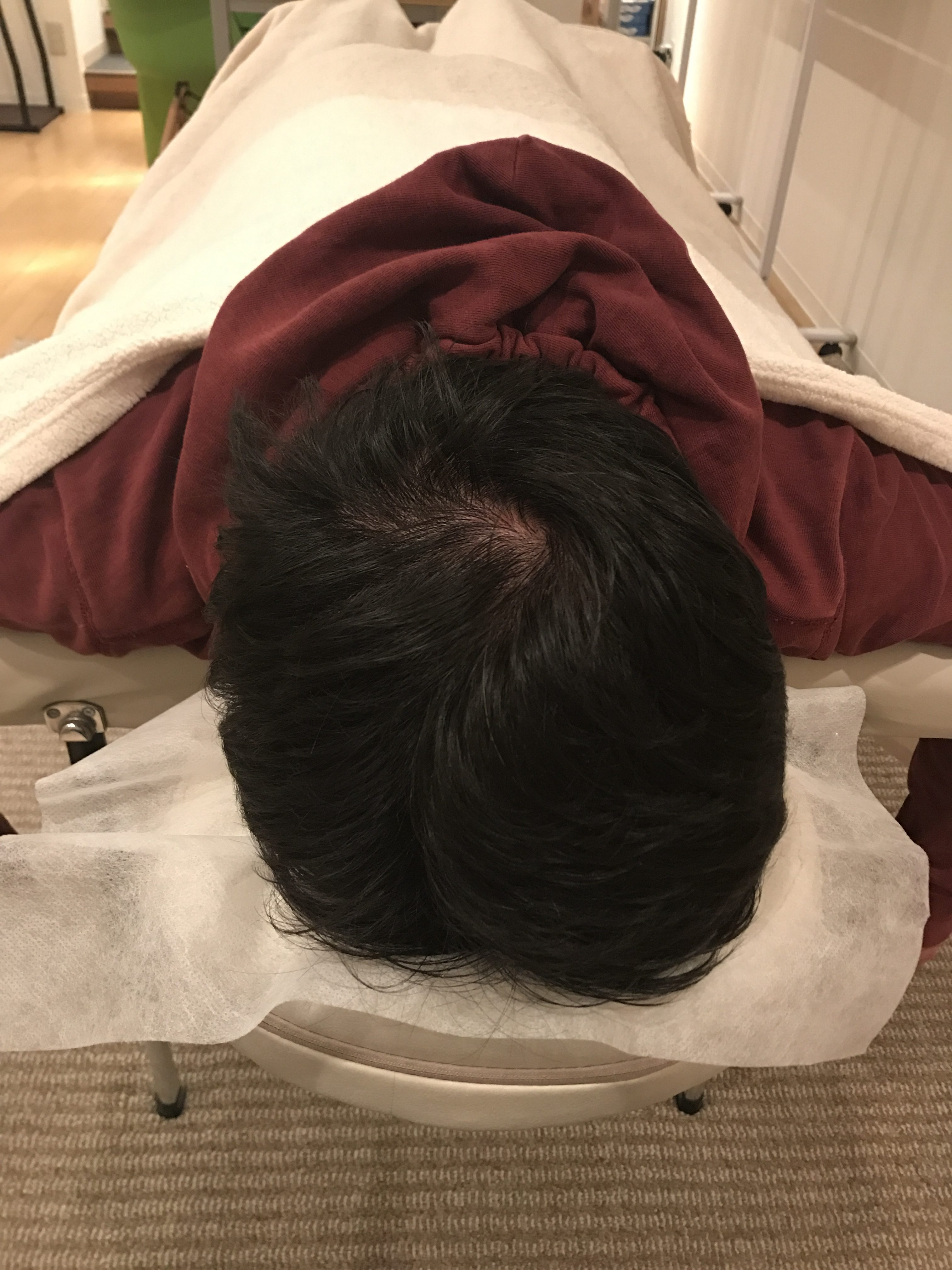 右側の頭痛とつまり感、眼精疲労、右半身の不調 江古田/東長崎「ながさき整骨院」