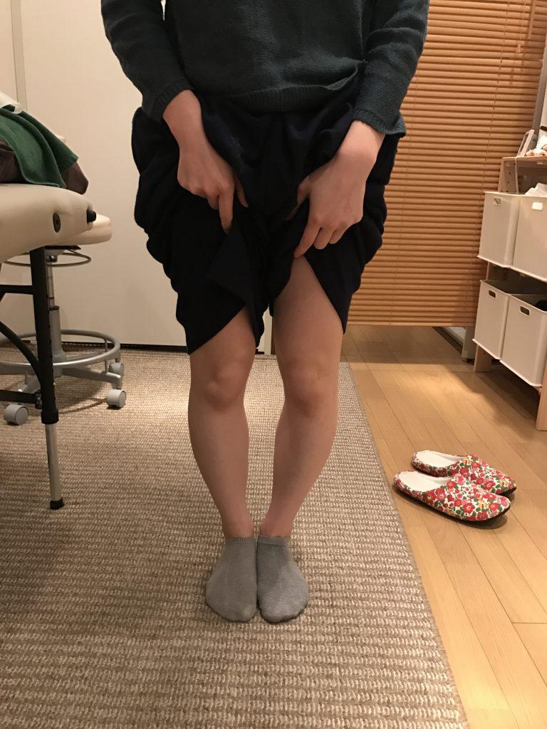 O脚の方は、扁平足の方が多い