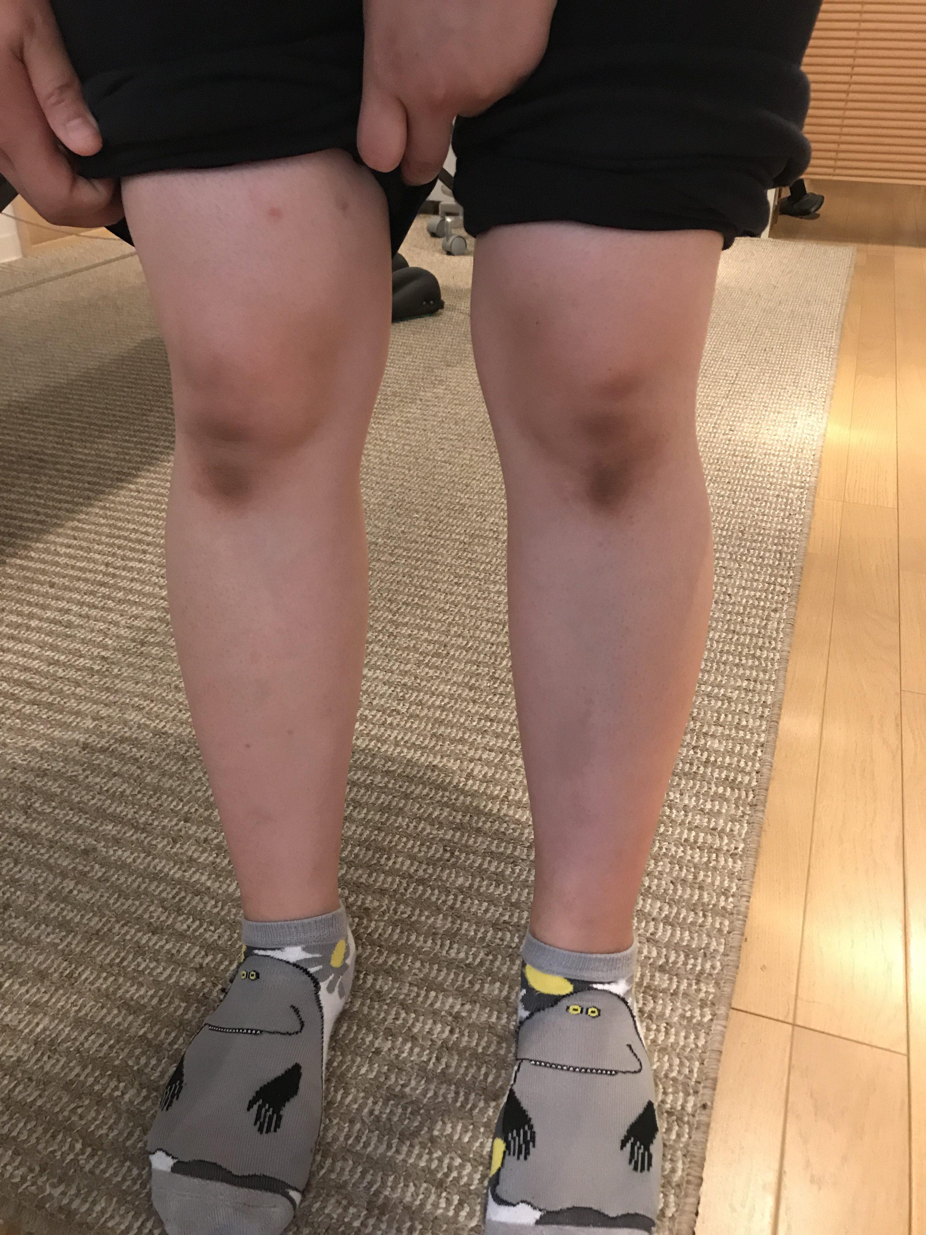 歩いたり、立ったり、しゃがむと膝の内側が痛み 椎名町・目白在住からお越しの方の悩み