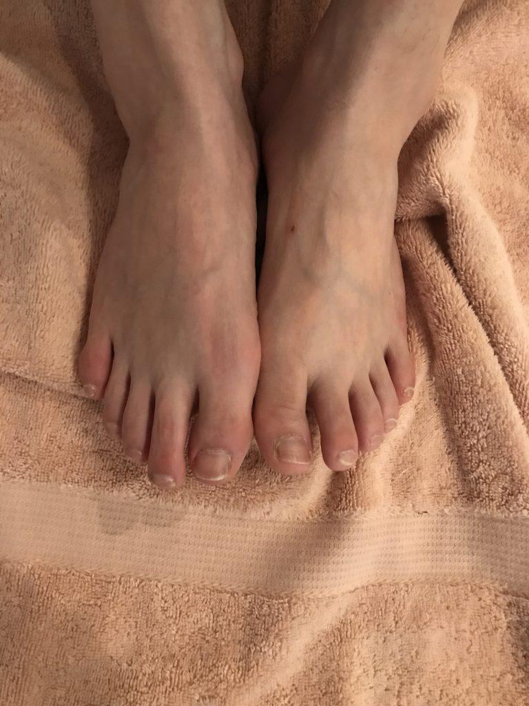 内反小趾ではないけれど、小指が原因での腰痛。椎名町・目白在住の方の症例