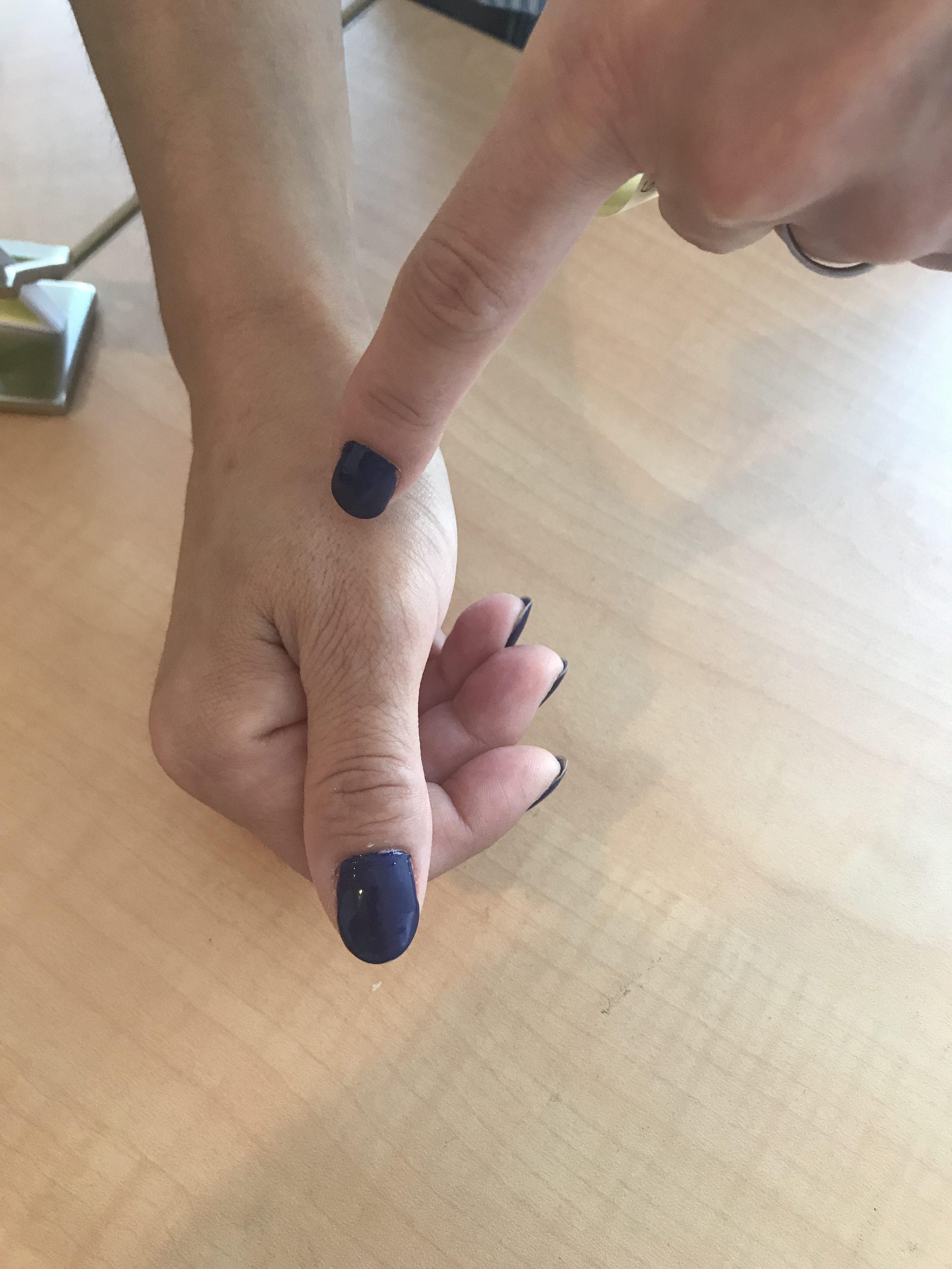 バネ指への施術症例 豊島区/池袋東長崎「ながさき整骨院」