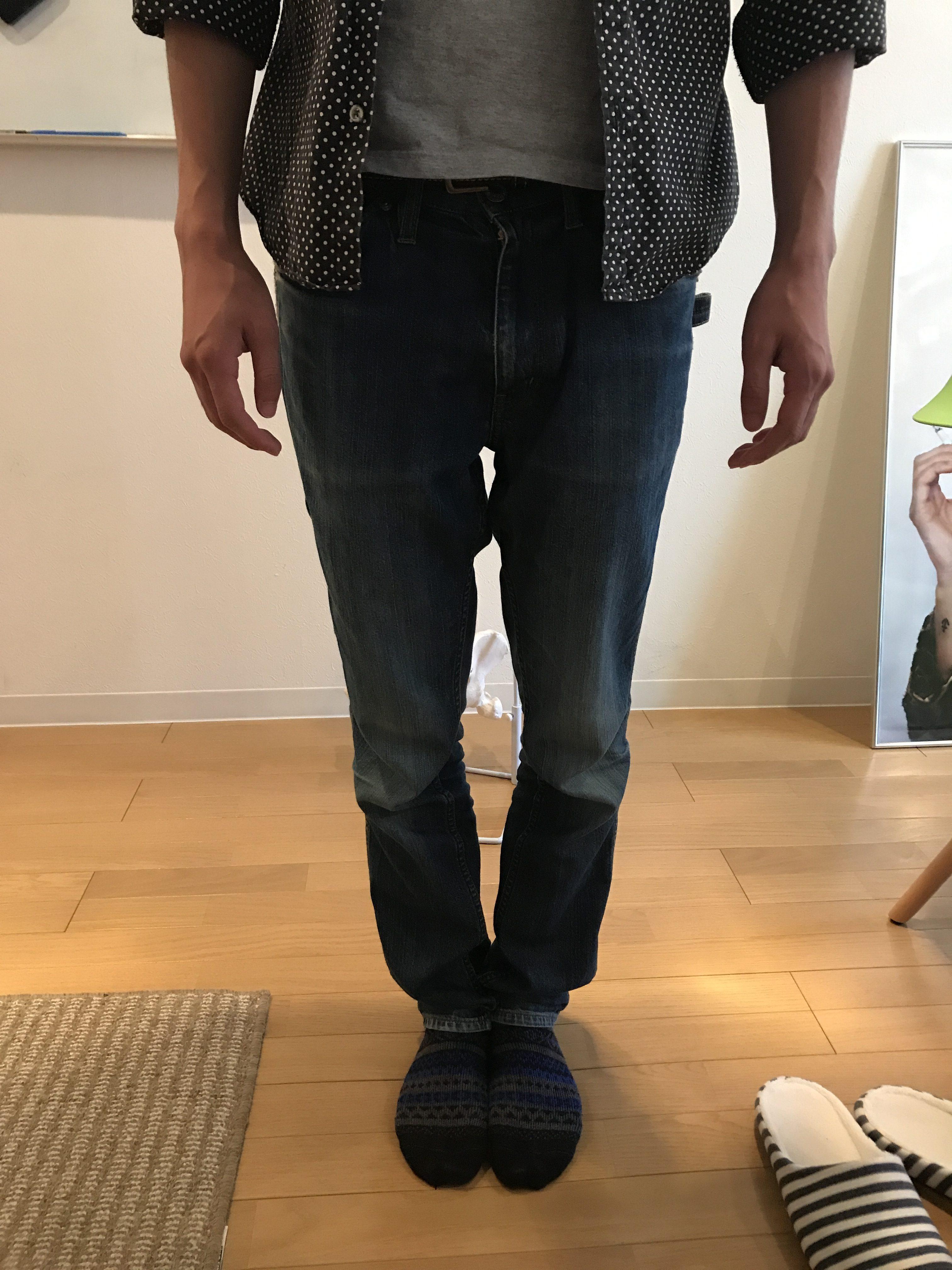 O脚を改善していかないと、身体が歪みやすい