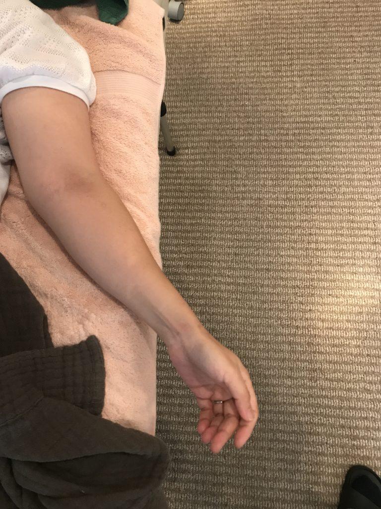 肘のねじれから坐骨神経痛が発生していた話 〜豊島区西池袋・目白在住の方の症例