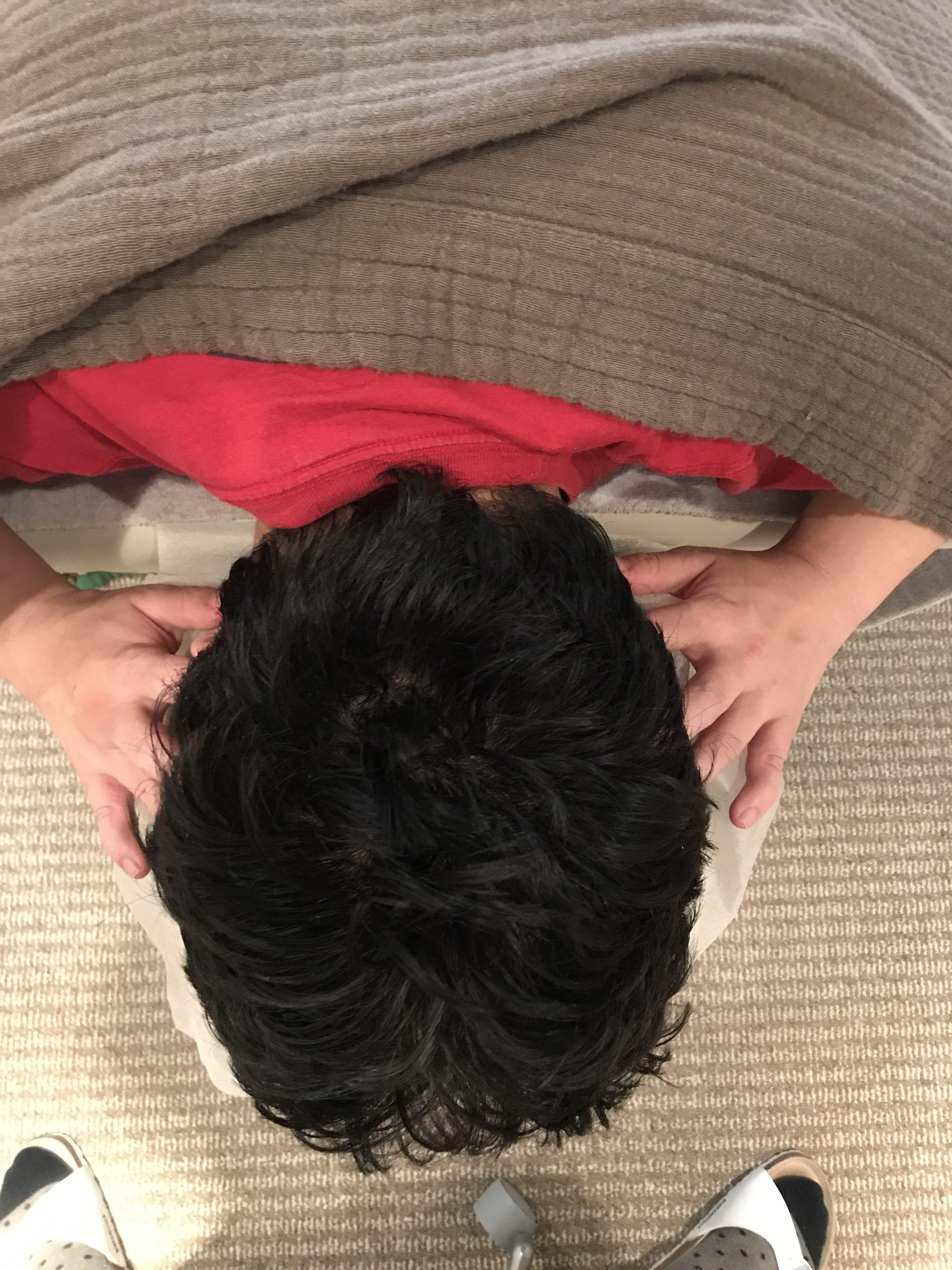 耳鳴りと頭蓋骨のねじれ(耳の位置のずれ)