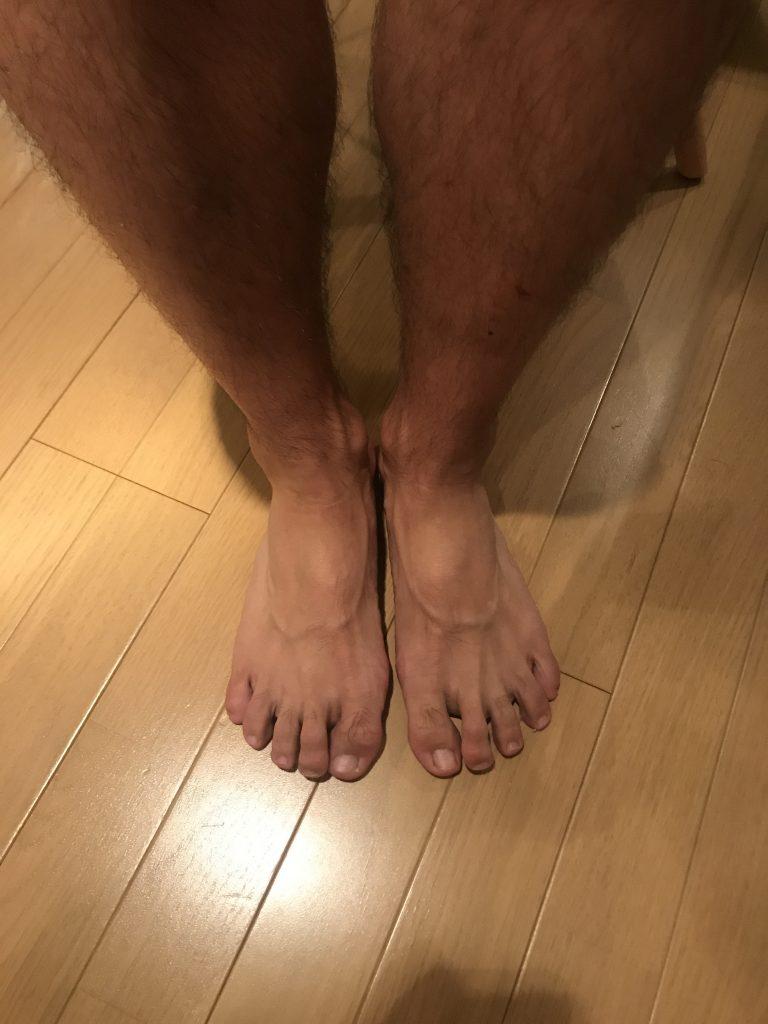 重度な腰痛で悩んでいる方のほとんどが足の指が弱っている