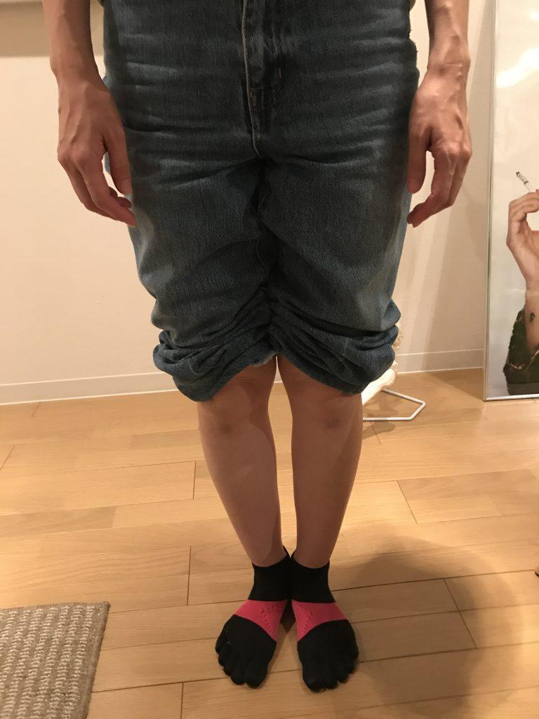 ひざ下のねじれが厳しいO脚 〜目白・西池袋在住の方の症例