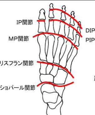 リスフラン関節症(歩くと足の甲が痛い)
