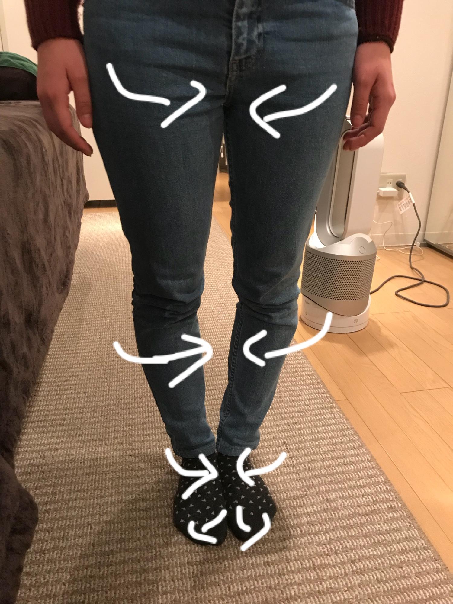 足の歪みを矯正すればO脚は改善する。