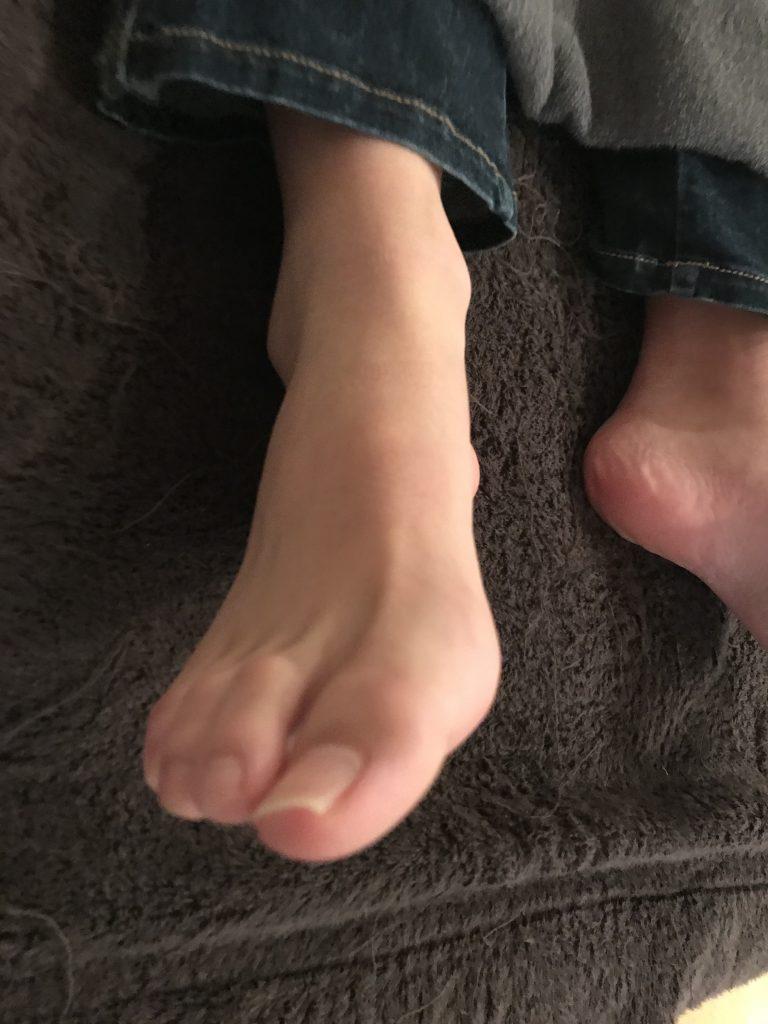 【外反母趾の方は必見!】外反母趾を改善する運動とは?
