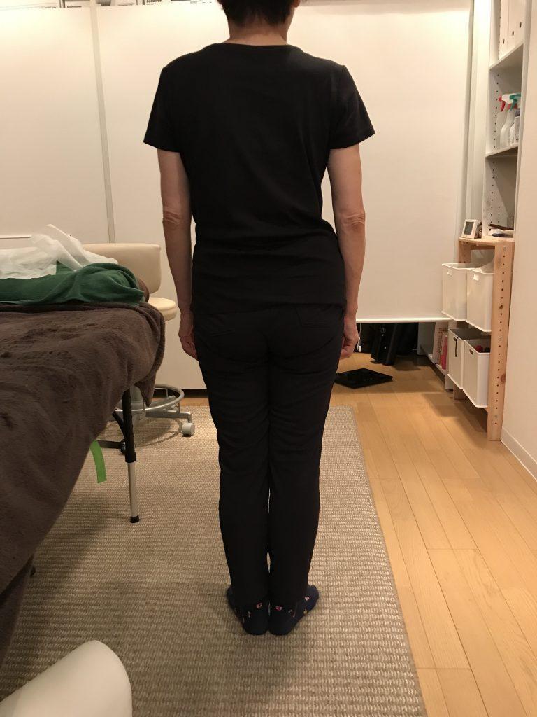 左肩だけ肩こり、肩の高さが左右で違う、左肩が高い、原因とは?