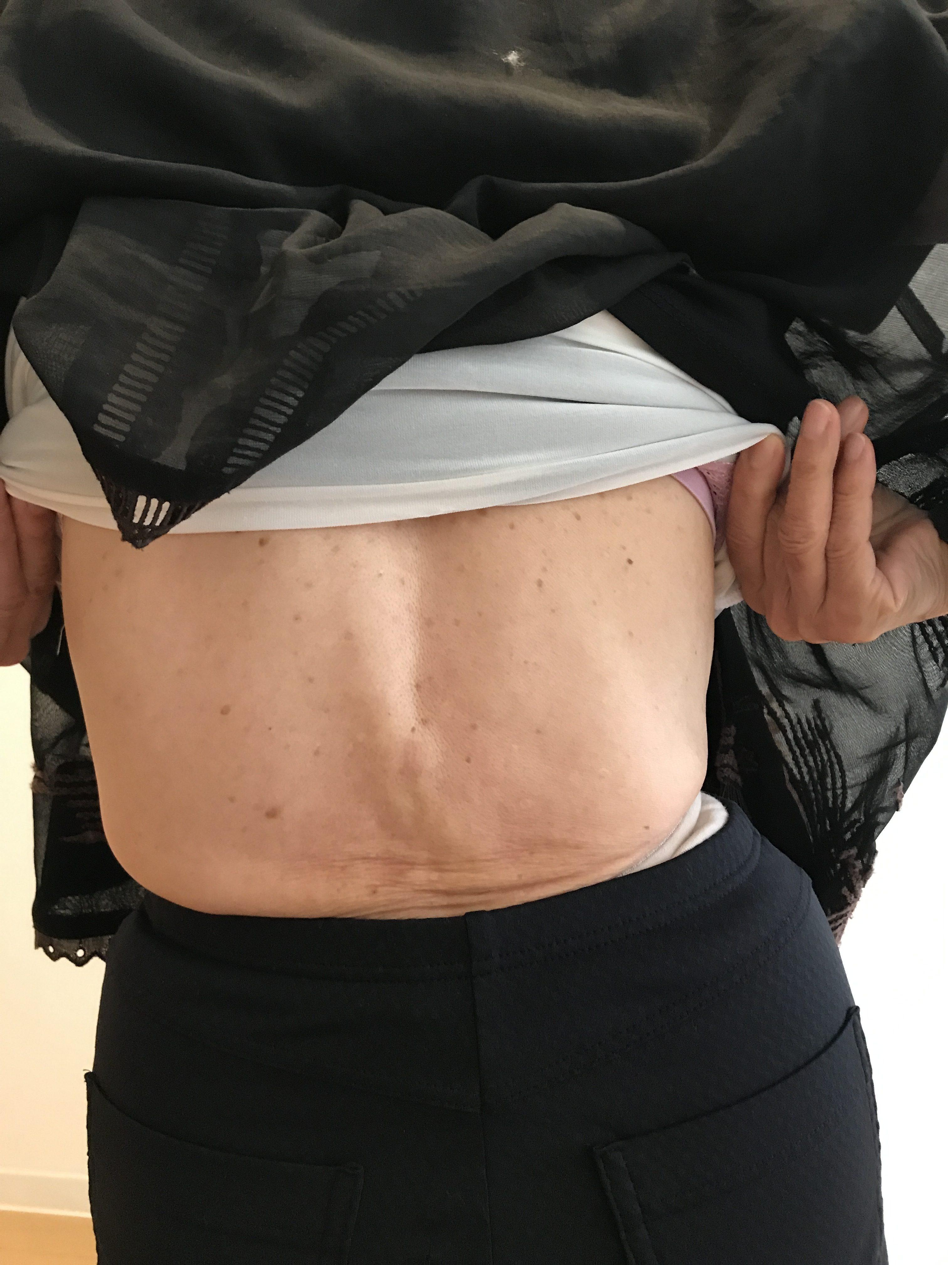 背中の痛みと腰痛を抱えた側湾症の方への施術