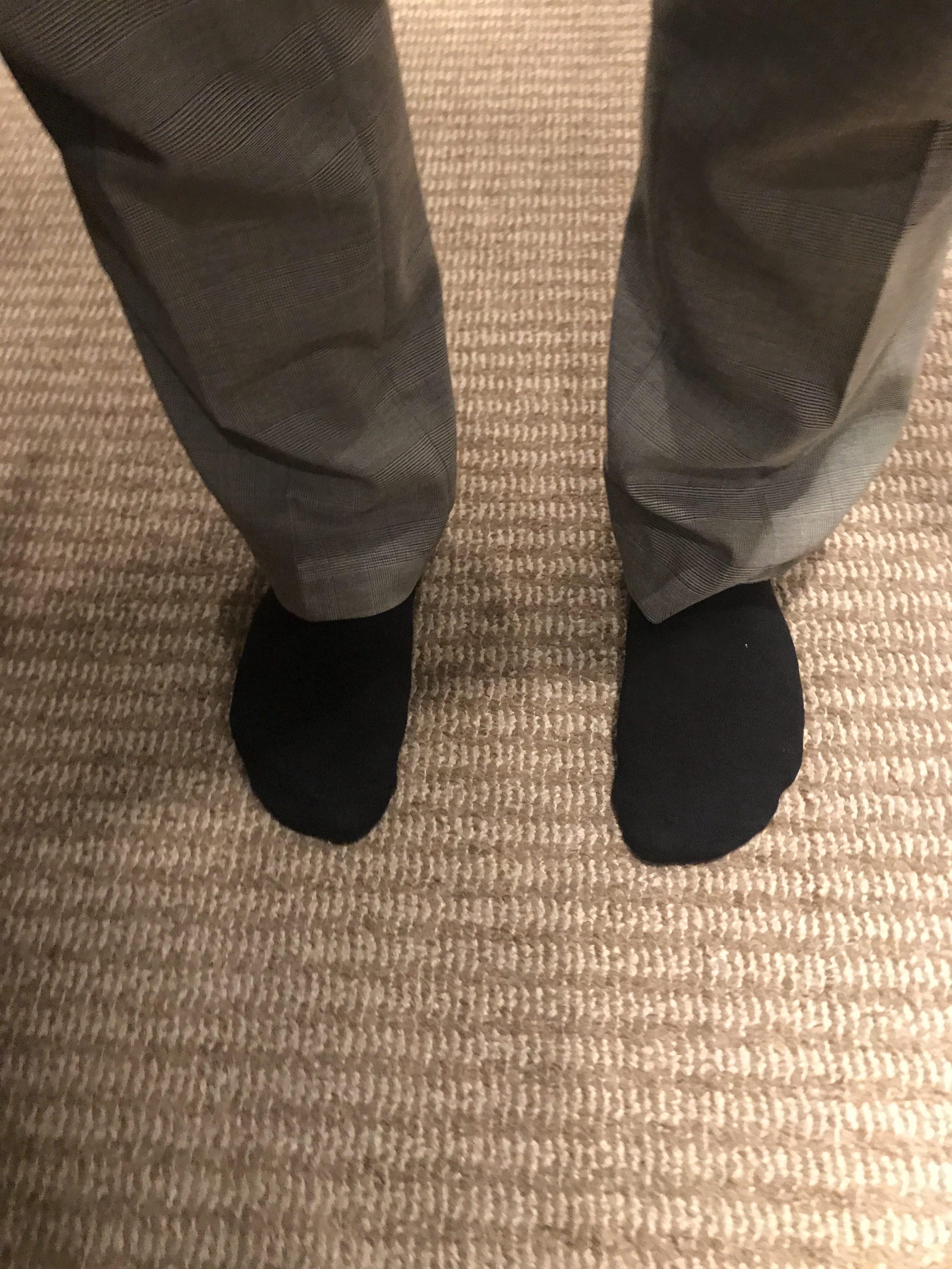 腰痛(ヘルニア)の原因は足のアーチの低下だった話 千川・要町在住の方の症例
