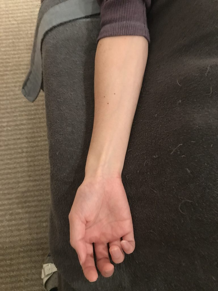 手首のねじれが肘痛(腱鞘炎・テニス肘)の原因になることもある。