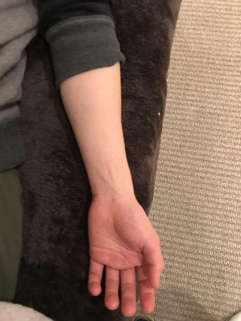 腕の疲れの原因とは?