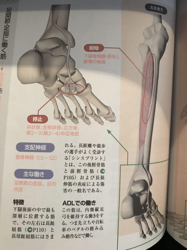 後脛骨筋腱炎とは?(内側のくるぶしのあたりが痛い)