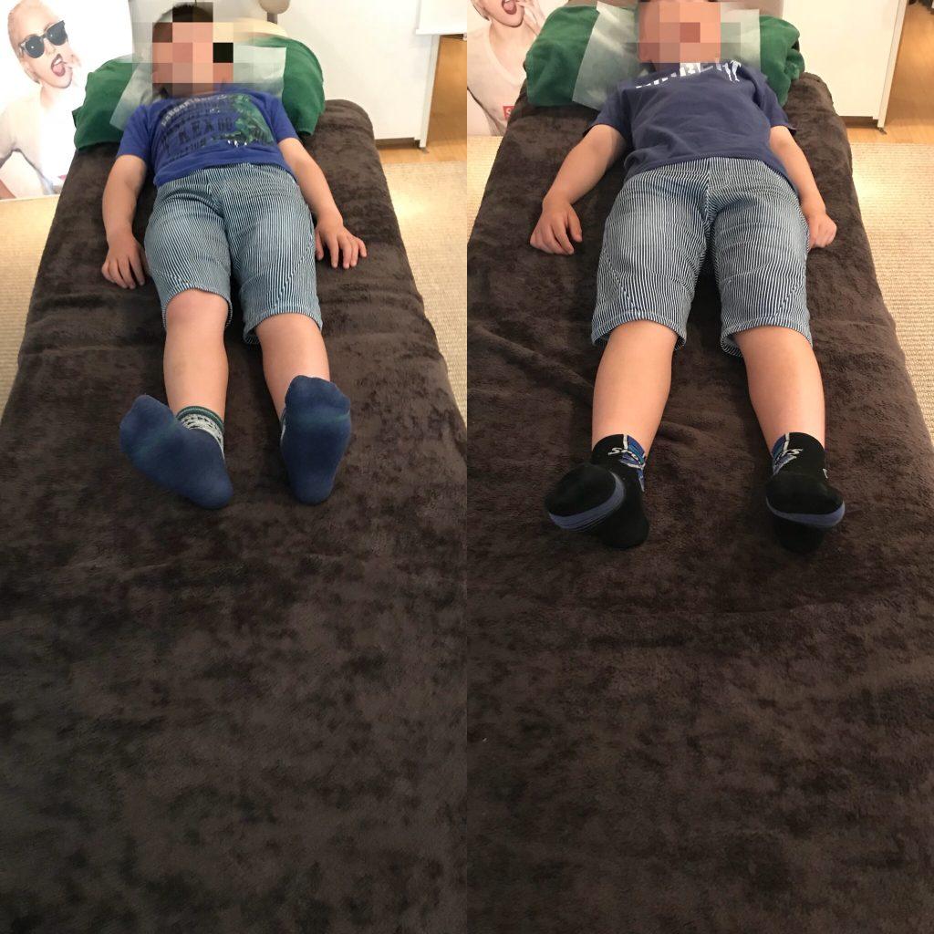猫背・内股で悩んでいた子供への施術(整体)