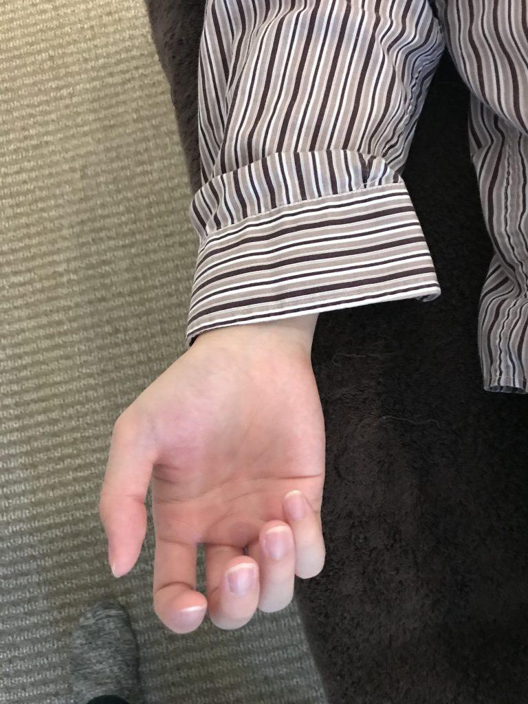 「パソコン腱鞘炎」「マウス腱鞘炎」による手首や親指の痛みを和らげるには?