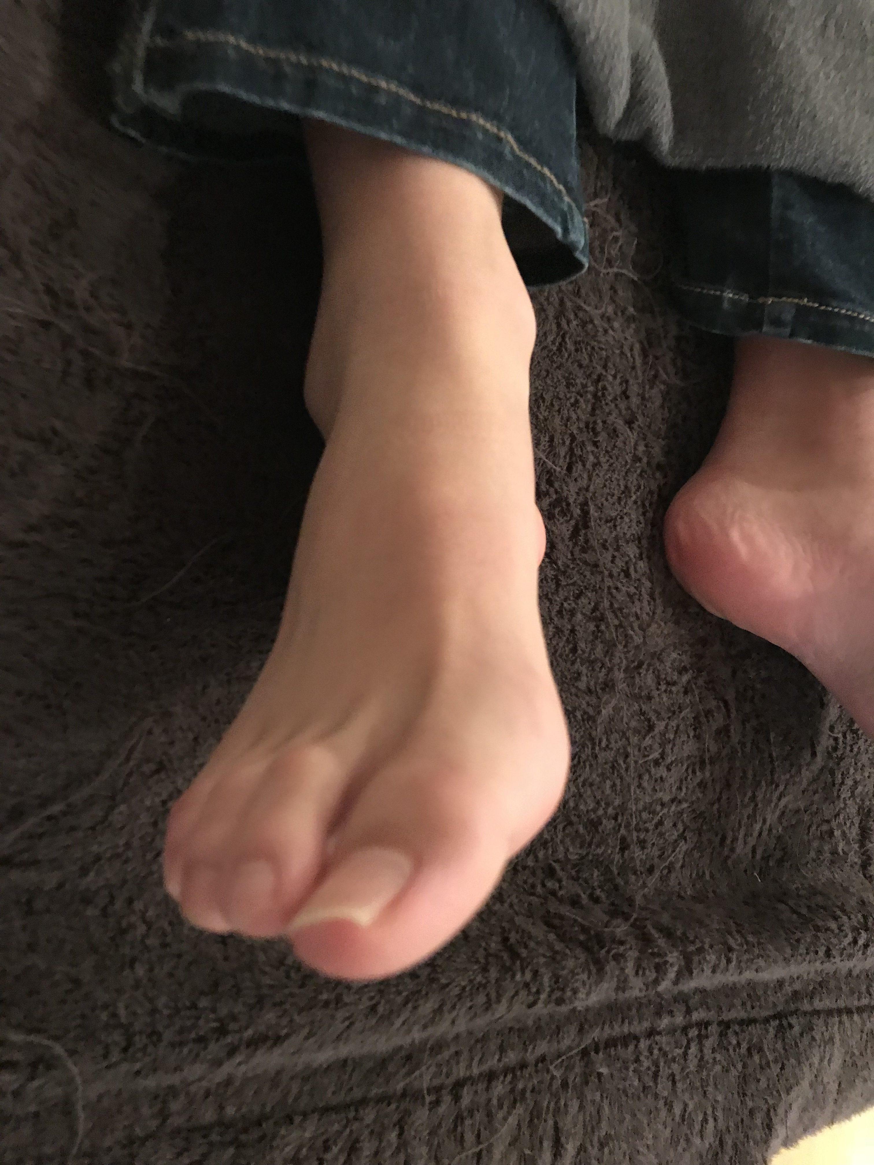 外反母趾と扁平足の原因と施術(治療)方法は?